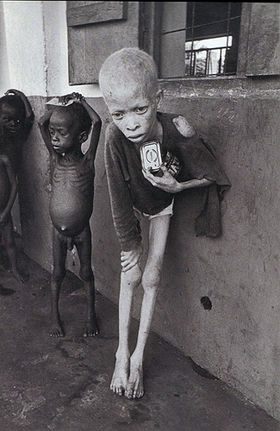 McCullin Biafran Child